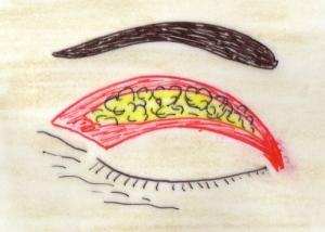 Chirurgie esthétique des paupières - Docteur Senechaut