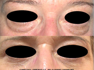 chirurgie-esthetique-des-paupieres-avant-apres-5