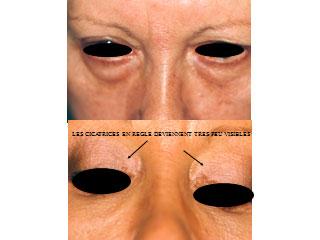 chirurgie-esthetique-des-paupieres-avant-apres-6