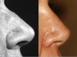 chirurgie-esthetique-du-nez-avant-apres-1