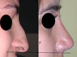 chirurgie-esthetique-du-nez-avant-apres-10