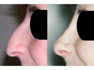 chirurgie-esthetique-du-nez-avant-apres-12