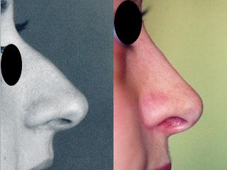 chirurgie-esthetique-du-nez-avant-apres-20