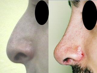 chirurgie-esthetique-du-nez-avant-apres-21