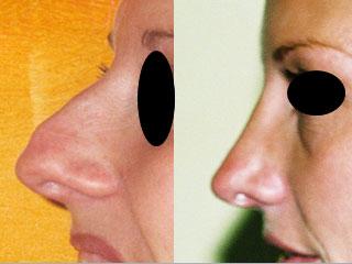 chirurgie-esthetique-du-nez-avant-apres-22