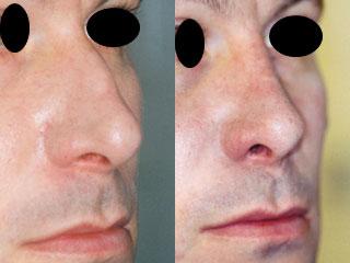 chirurgie-esthetique-du-nez-avant-apres-24