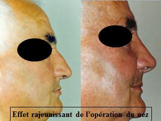 chirurgie-esthetique-du-nez-avant-apres-29