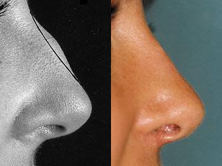 chirurgie-esthetique-du-nez-avant-apres-3