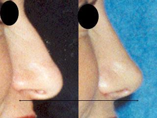 chirurgie-esthetique-du-nez-avant-apres-8