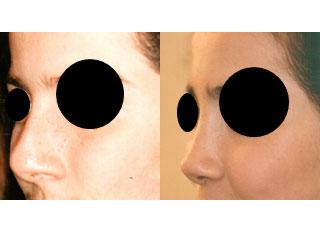 chirurgie-esthetique-du-nez-avant-apres-9