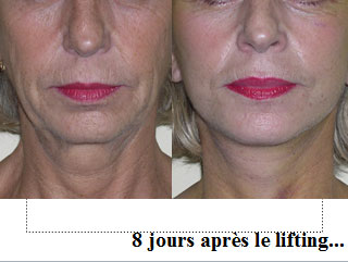 lifting-dr-senechaut-etampes-14-avant-apres