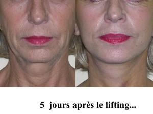 Lifting cervico facial à Etampes - Dr Senechaut